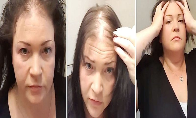 Hair Loss In Women – The Visible Secret