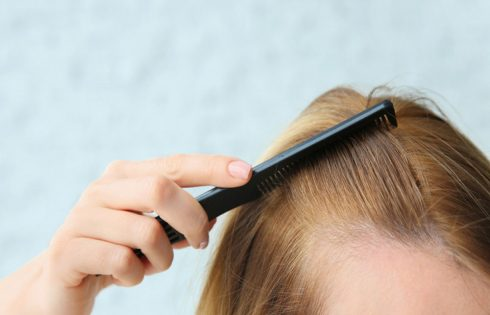 Hair Loss in Women - Causes